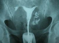 Непроходимость маточных труб как причина бесплодия