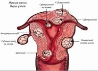 Нюансы лечения миомы матки малых размеров